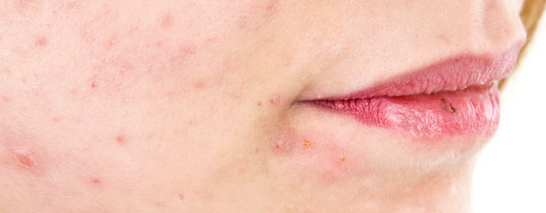 Acne Scarring How To Heal It
