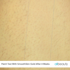 smoothskin gold patch test