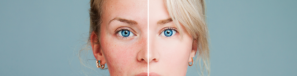 Dealing With Hormonal Acne: How To Recognise And Treat it